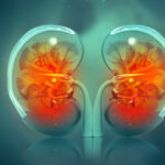 Artificial Kidneys Are a Step Closer With This New Tech